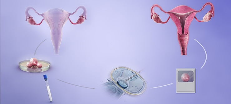 Know About the Difference between IVF and IUI