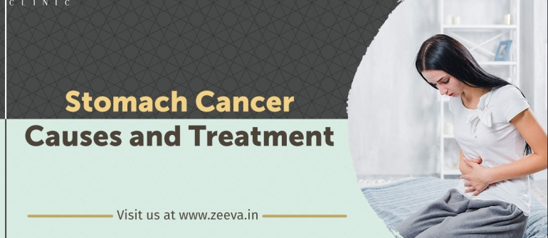 Stomach Cancer Causes & Treatment